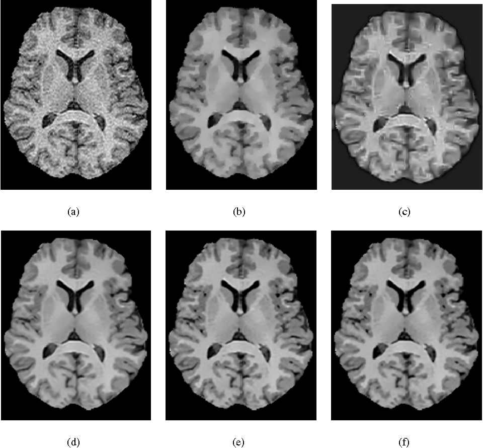Figure 3 for A New Similarity Measure for Non-Local Means Filtering of MRI Images