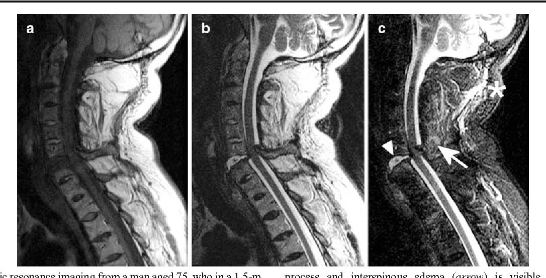MRI of cervical spine injuries complicating ankylosing spondylitis ...