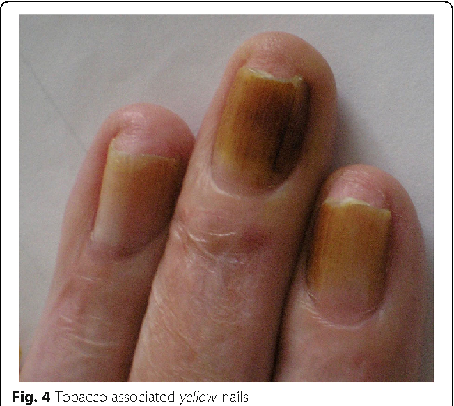 Figure 4 from Transient yellow discoloration of the nails for ...
