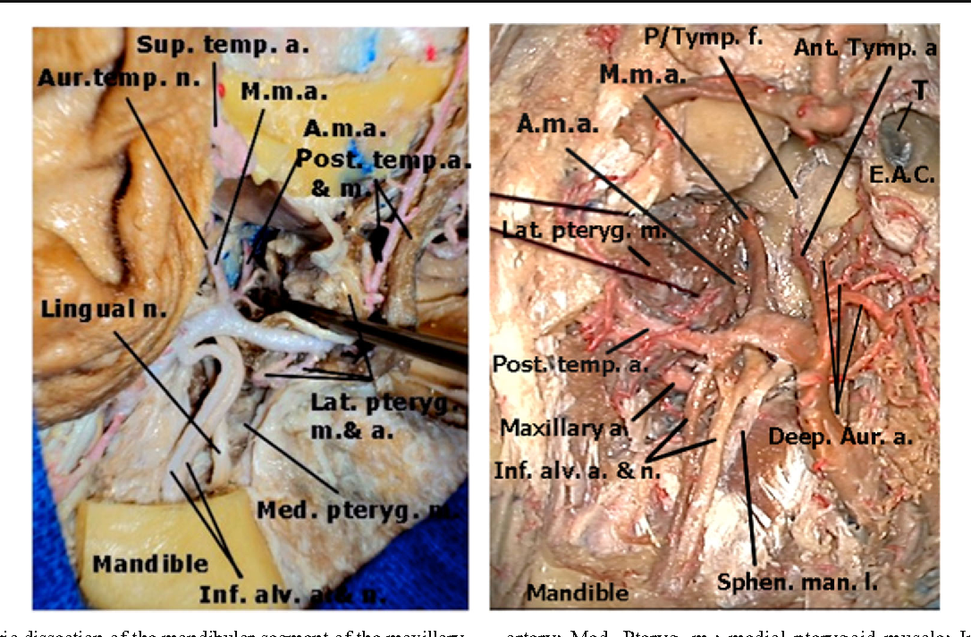 The maxillary artery and its variants: an anatomical study with ...