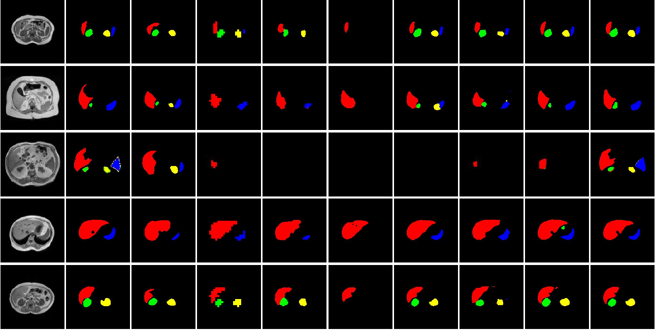 Figure 4 for A New Multiple Max-pooling Integration Module and Cross Multiscale Deconvolution Network Based on Image Semantic Segmentation