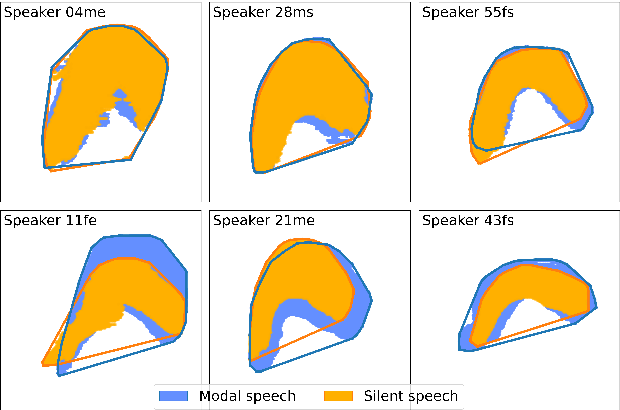Figure 4 for Silent versus modal multi-speaker speech recognition from ultrasound and video
