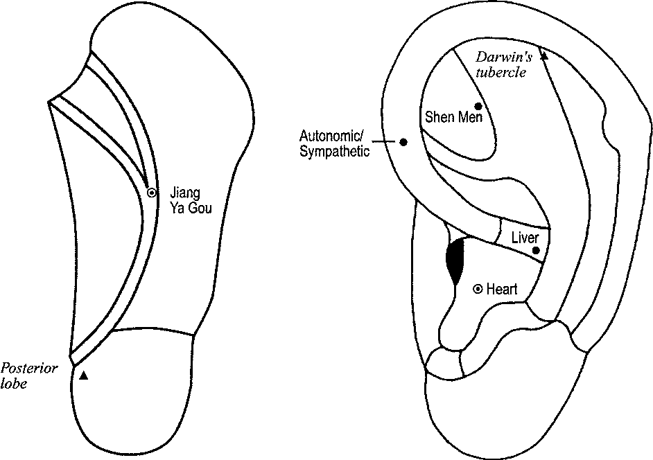 Figure 3 From Stop Hypertension With The Acupuncture Research