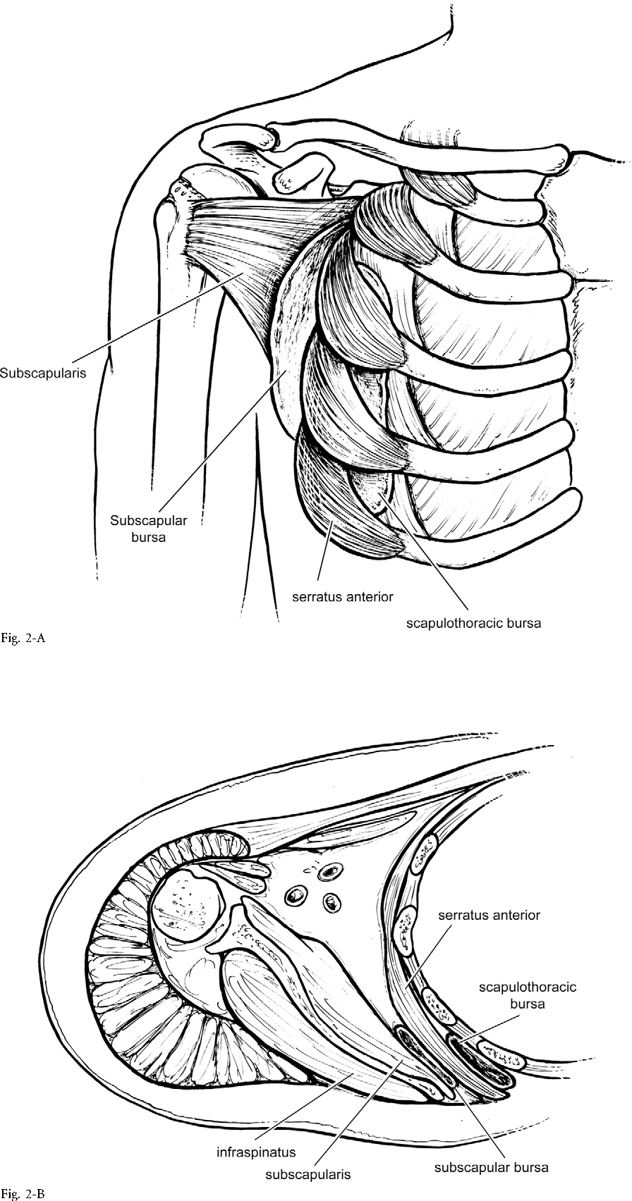 Figure 2 from Current Concepts Review Snapping Scapula Syndrome ...