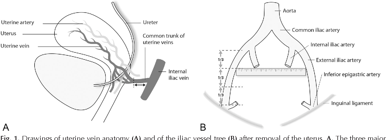 Vascular pedicle lengths after hysterectomy: toward future human ...
