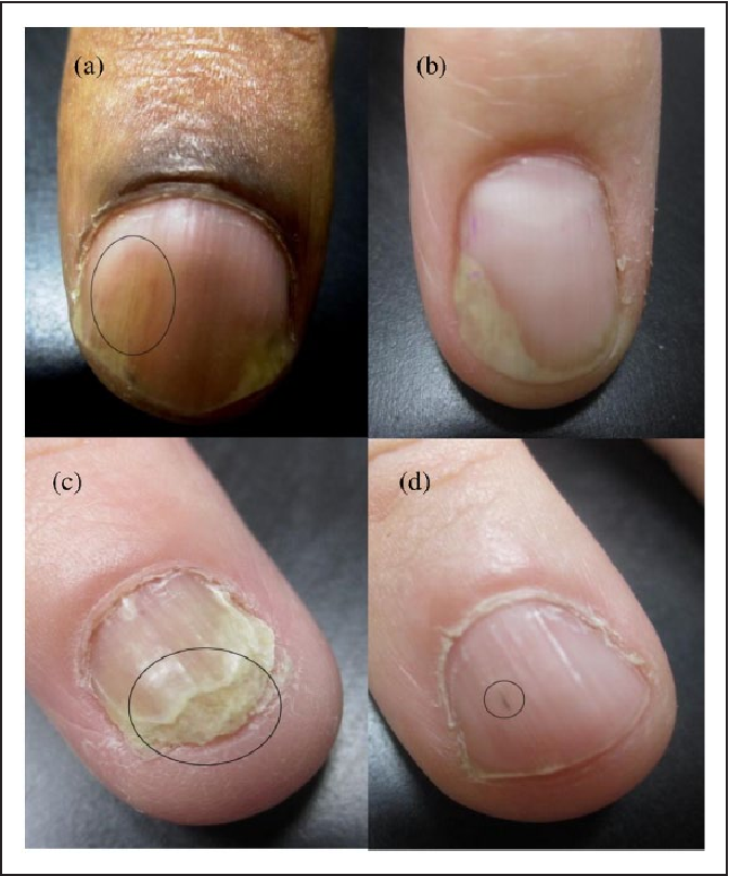 Psoriatic Nail Changes Are Associated With Clinical Outcomes in ...