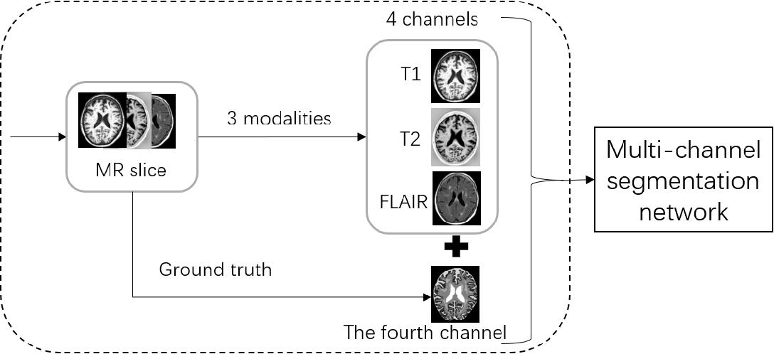 Figure 1 for A Multi-channel Network with Image Retrieval for Accurate Brain Tissue Segmentation
