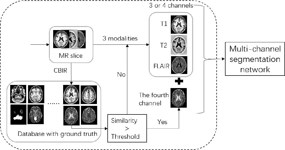 Figure 3 for A Multi-channel Network with Image Retrieval for Accurate Brain Tissue Segmentation
