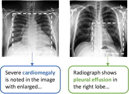 Figure 1 for Contrastive Learning of Medical Visual Representations from Paired Images and Text