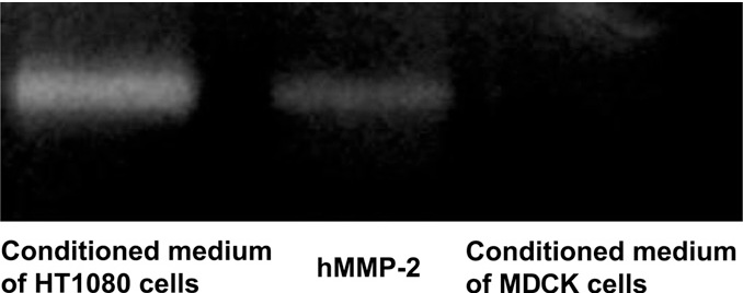 Fig. 5. Zymography of secreted MMP-2 in the conditioned medium of HT1080 cells and MDCK cells. The lanes show the conditioned medium of HT1080 cells, hMMP-2 as the standard and the conditioned medium of MDCK cells, respectively.