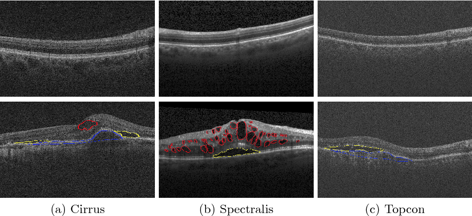 Figure 1 for Retinal Fluid Segmentation and Detection in Optical Coherence Tomography Images using Fully Convolutional Neural Network