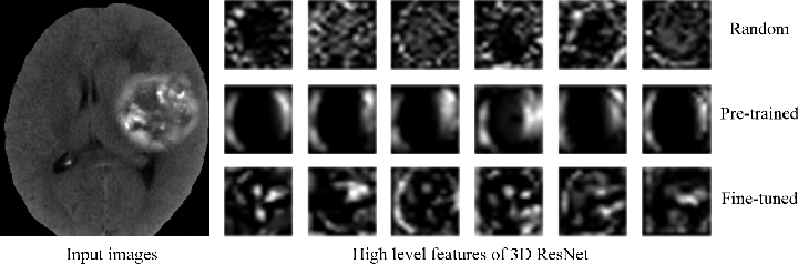 Figure 4 for Embedding Task Knowledge into 3D Neural Networks via Self-supervised Learning