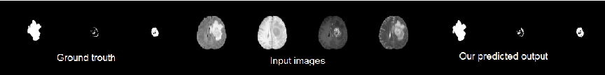Figure 3 for Conditional Adversarial Network for Semantic Segmentation of Brain Tumor