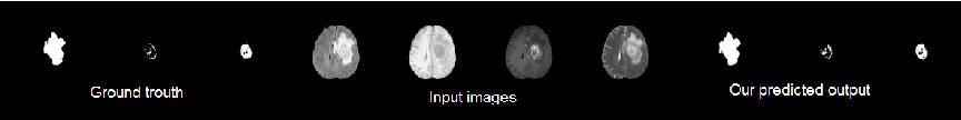 Figure 3 for Conditional Adversarial Network for Semantic Segmentation of Brain Tumor