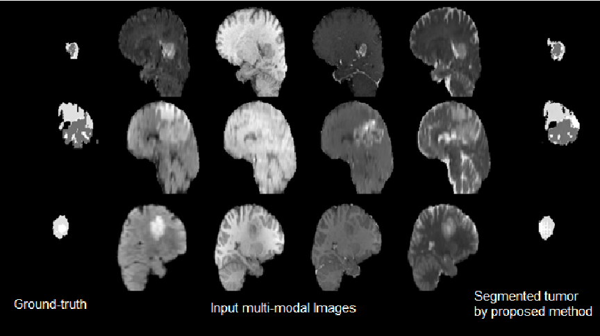 Figure 4 for Conditional Adversarial Network for Semantic Segmentation of Brain Tumor