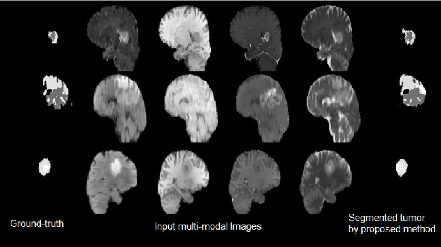 Figure 4 for Conditional Adversarial Network for Semantic Segmentation of Brain Tumor