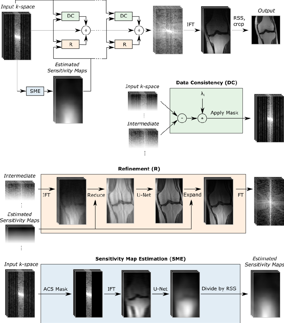 Figure 1 for End-to-End Variational Networks for Accelerated MRI Reconstruction