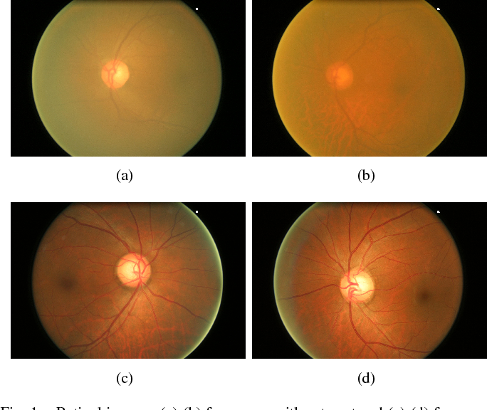 Figure 1 for Structure-preserving Guided Retinal Image Filtering and Its Application for Optic Disc Analysis