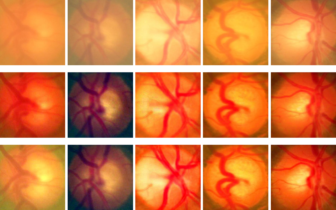Figure 4 for Structure-preserving Guided Retinal Image Filtering and Its Application for Optic Disc Analysis