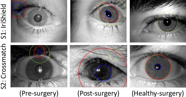 Figure 1 for SegDenseNet: Iris Segmentation for Pre and Post Cataract Surgery
