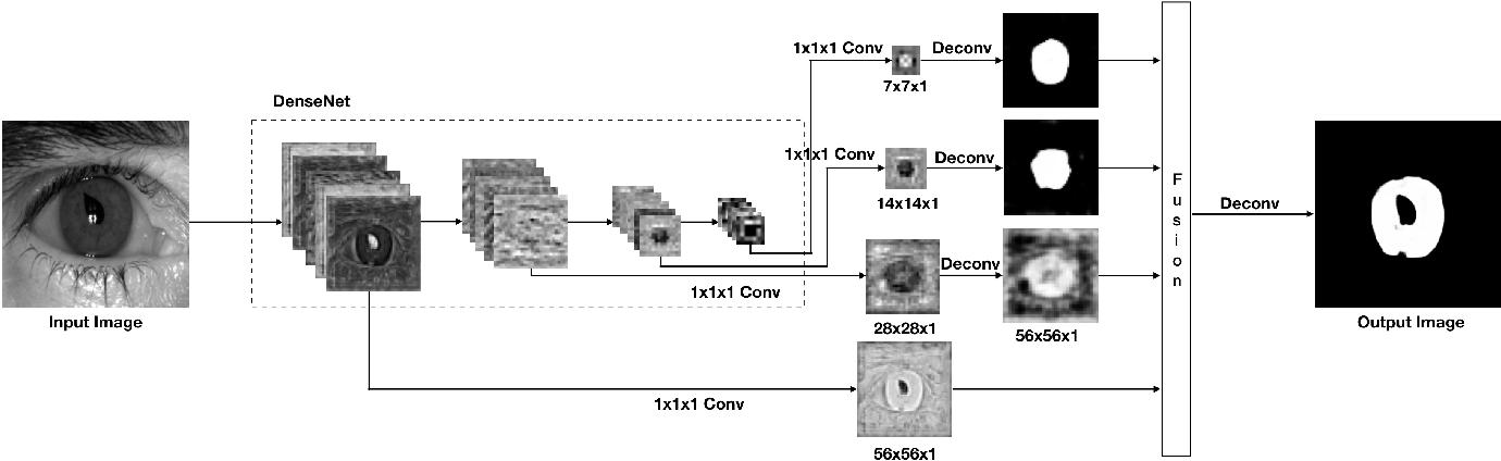 Figure 2 for SegDenseNet: Iris Segmentation for Pre and Post Cataract Surgery