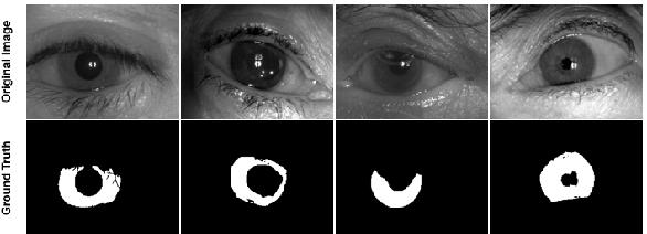 Figure 4 for SegDenseNet: Iris Segmentation for Pre and Post Cataract Surgery