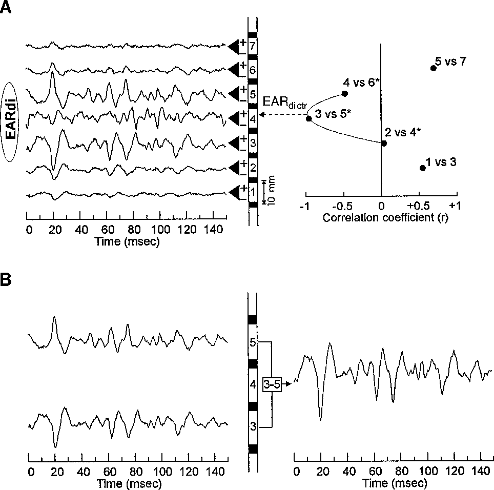 Figure 1 From Enhancement Of Signal Quality In Esophageal Recordings