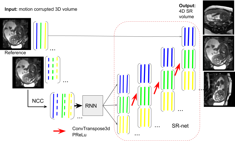 Figure 1 for Self-supervised Recurrent Neural Network for 4D Abdominal and In-utero MR Imaging