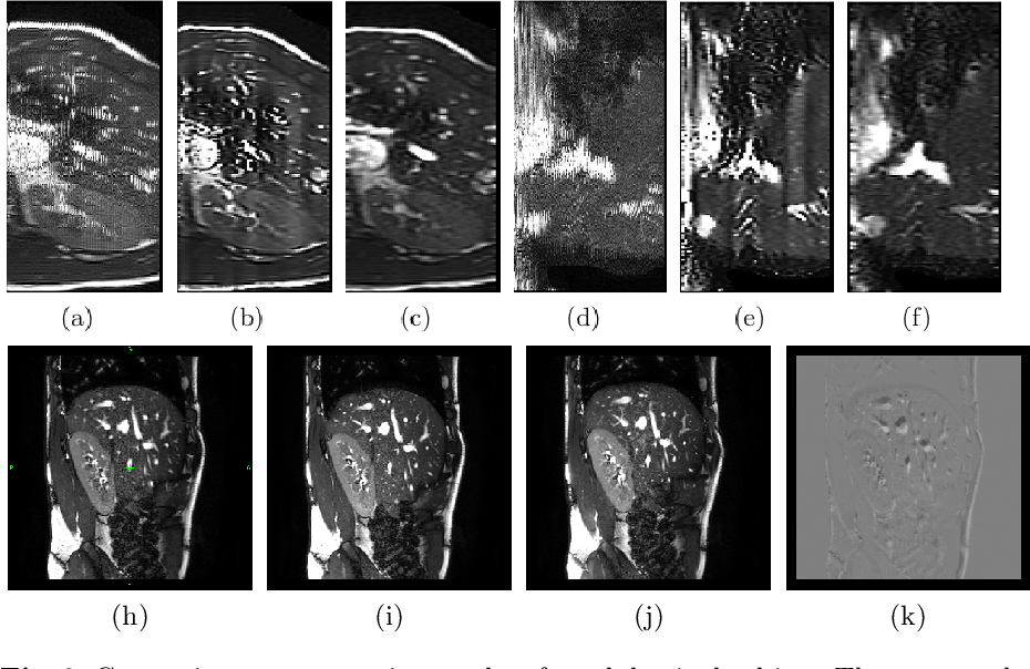 Figure 3 for Self-supervised Recurrent Neural Network for 4D Abdominal and In-utero MR Imaging