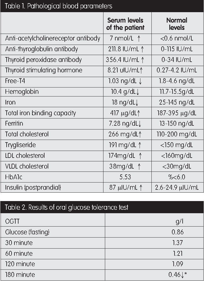Table 2 From Ocular Myasthenia Gravis Hashimotos Thyroiditis Iron