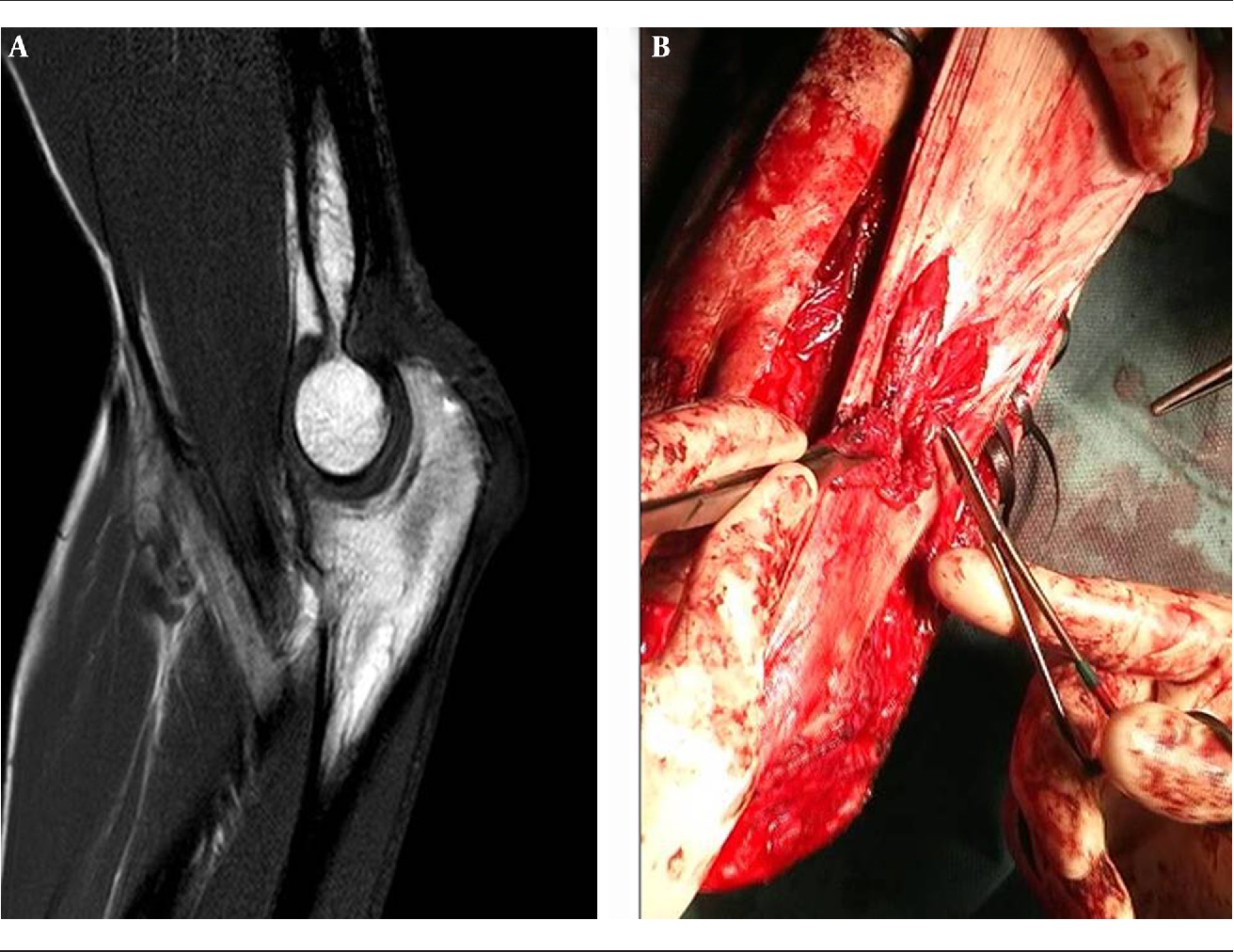 Treatment of a Complex Distal Triceps Tendon Rupture With a New ...