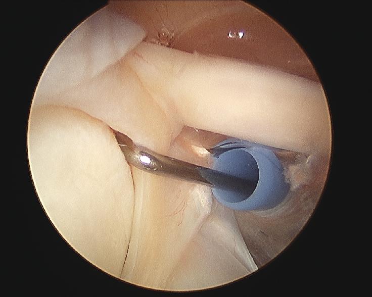 Shoulder arthroscopy positioning: lateral decubitus versus beach ...