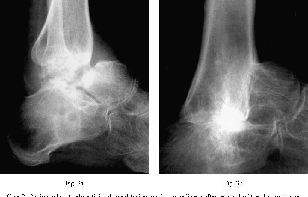 Tibiocalcaneal Fusion For Avascular Necrosis Of The Talus