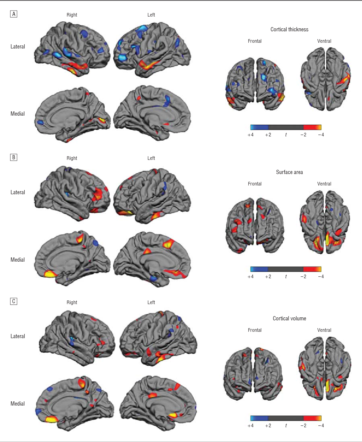 Brain surface anatomy in adults with autism: the relationship ...