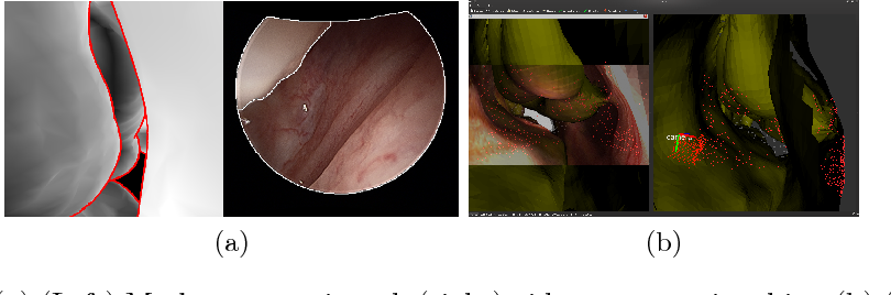 Figure 1 for Anatomically Constrained Video-CT Registration via the V-IMLOP Algorithm