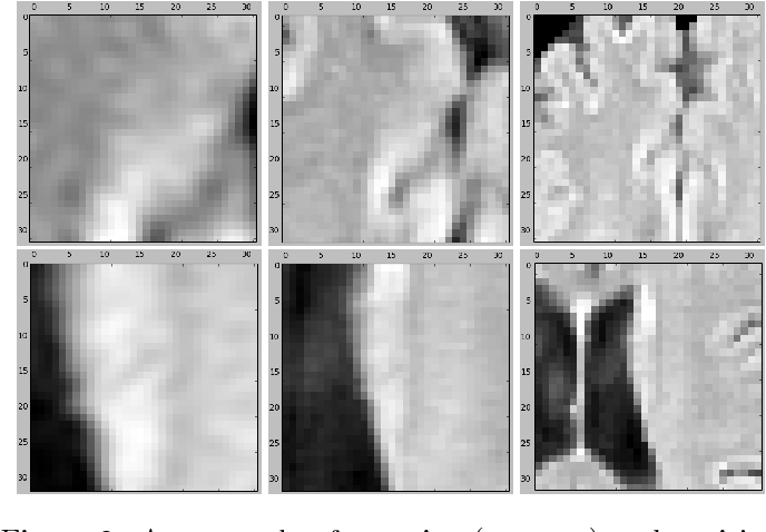 Figure 3 for Location Sensitive Deep Convolutional Neural Networks for Segmentation of White Matter Hyperintensities