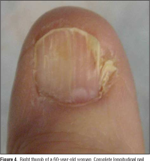 In situ amelanotic melanoma of the nail unit mimicking lichen planus ...