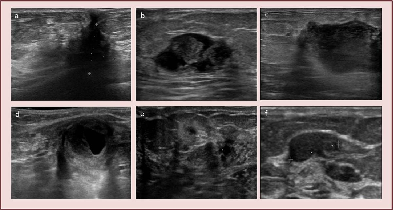 Figure 4 from Fat necrosis of the breast: is it (at) all? - Semantic