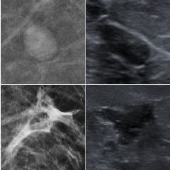 Figure 1 for Automatic Breast Lesion Classification by Joint Neural Analysis of Mammography and Ultrasound