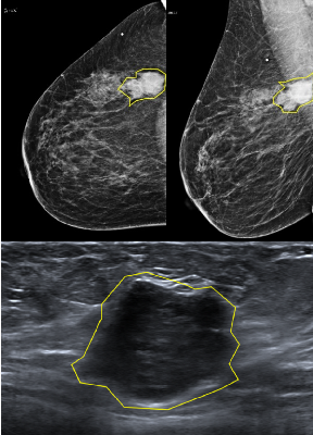 Figure 3 for Automatic Breast Lesion Classification by Joint Neural Analysis of Mammography and Ultrasound