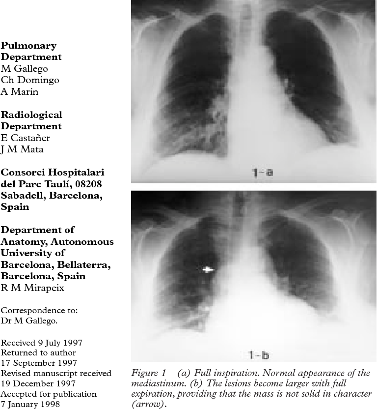 Idiopathic azygos vein aneurysm: a rare cause of mediastinal mass ...