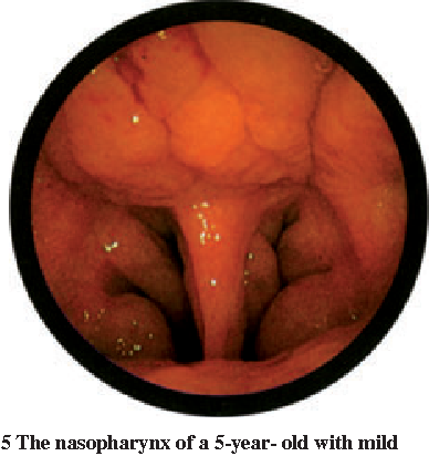 Figure 2 From Anatomy And Assessment Of The Pediatric Airway