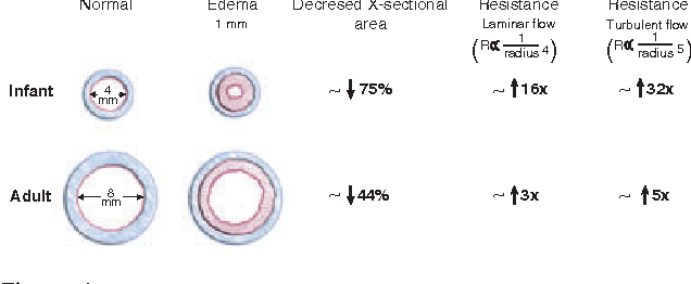 Figure 4 from Anatomy and assessment of the pediatric airway ...