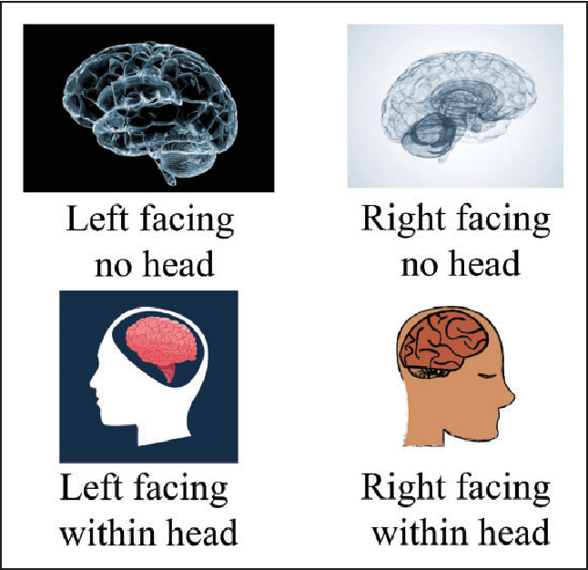 Turning The Other Lobe Directional Biases In Brain Diagrams