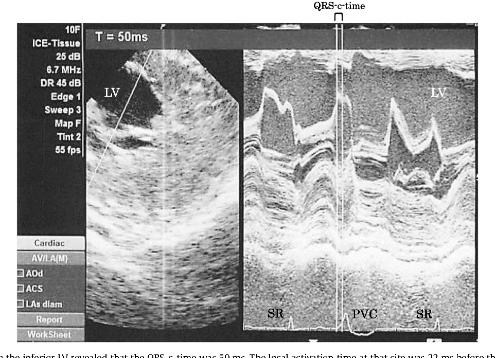 Fig. 5. The M-mode swept to the inferior LV revealed that the QRS-c-time was 50 ms. The local activation time at that site was 22 ms before the onset of the QRS. SR; sinus rhythm, PVC; premature ventricular complex, LV; left ventricle.