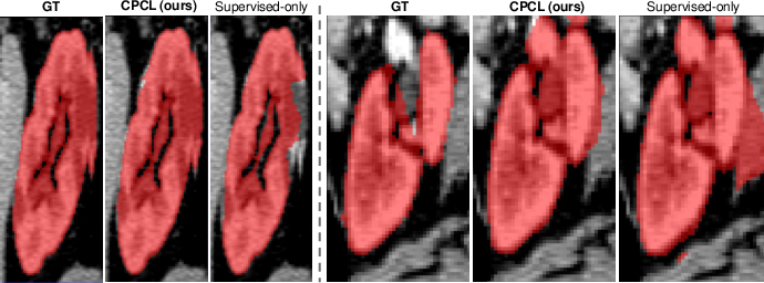 Figure 4 for All-Around Real Label Supervision: Cyclic Prototype Consistency Learning for Semi-supervised Medical Image Segmentation