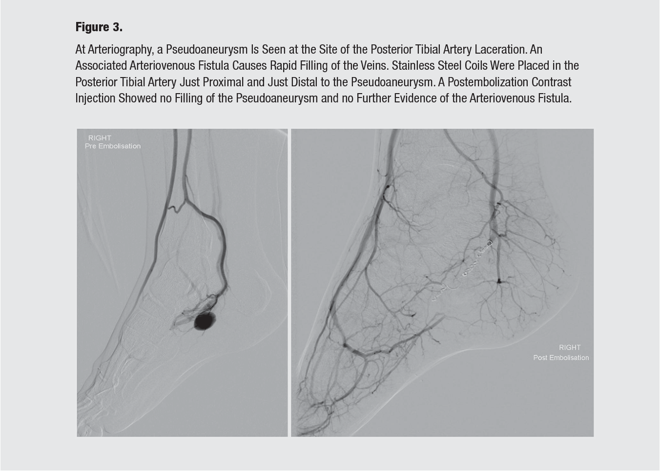 Traumatic Pseudoaneurysm Of The Posterior Tibial Artery Treated By