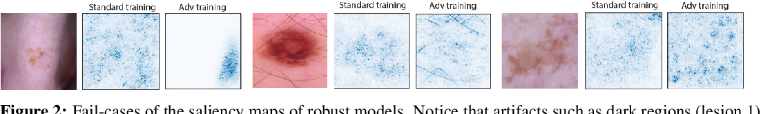 Figure 2 for Improving Interpretability in Medical Imaging Diagnosis using Adversarial Training