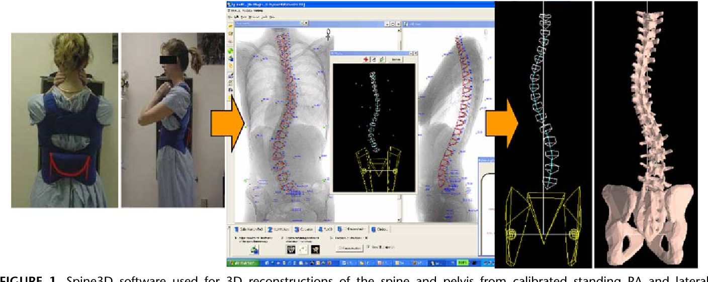 Figure 1 from Seeing the spine in 3D: how will it change