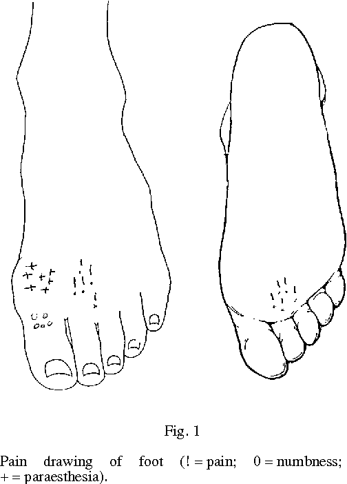 Tourniquets In Forefoot Surgery Less Pain When Placed At The Ankle